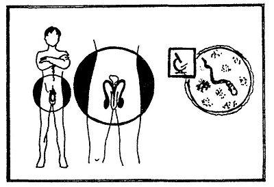 Прыщики под головкой полового члена - Вопрос венерологу - 03 Онлайн